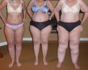 people mistake Lipoedema for people just being fat, which is not the case