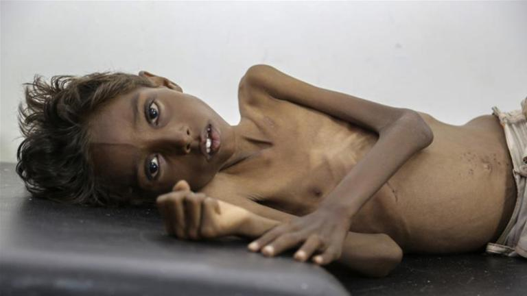 Yemen: The ForgottenConflict