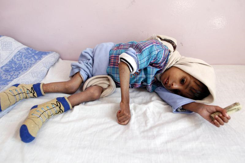 62 Human Rights Organizations Urge the UN to Investigate Saudi Arabia's Abuses in Yemen